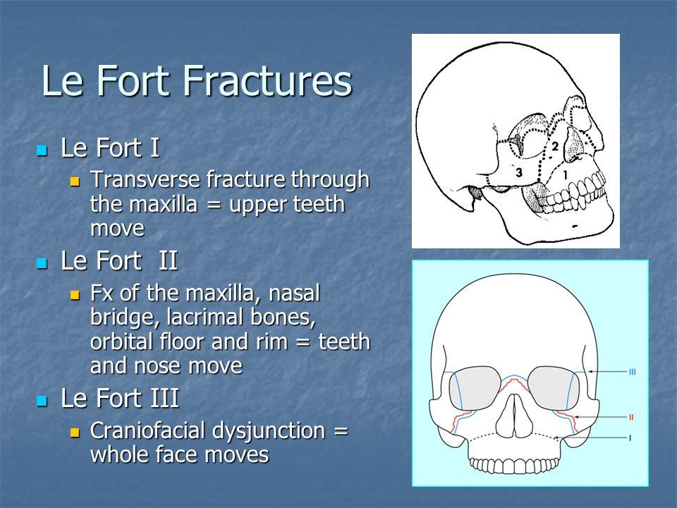 Le Fort Fractures Le Fort I Le Fort II Le Fort III