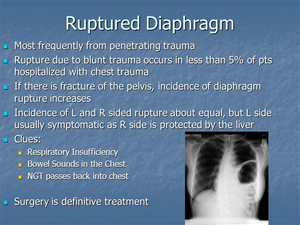 Ruptured Diaphragm Most frequently from penetrating trauma