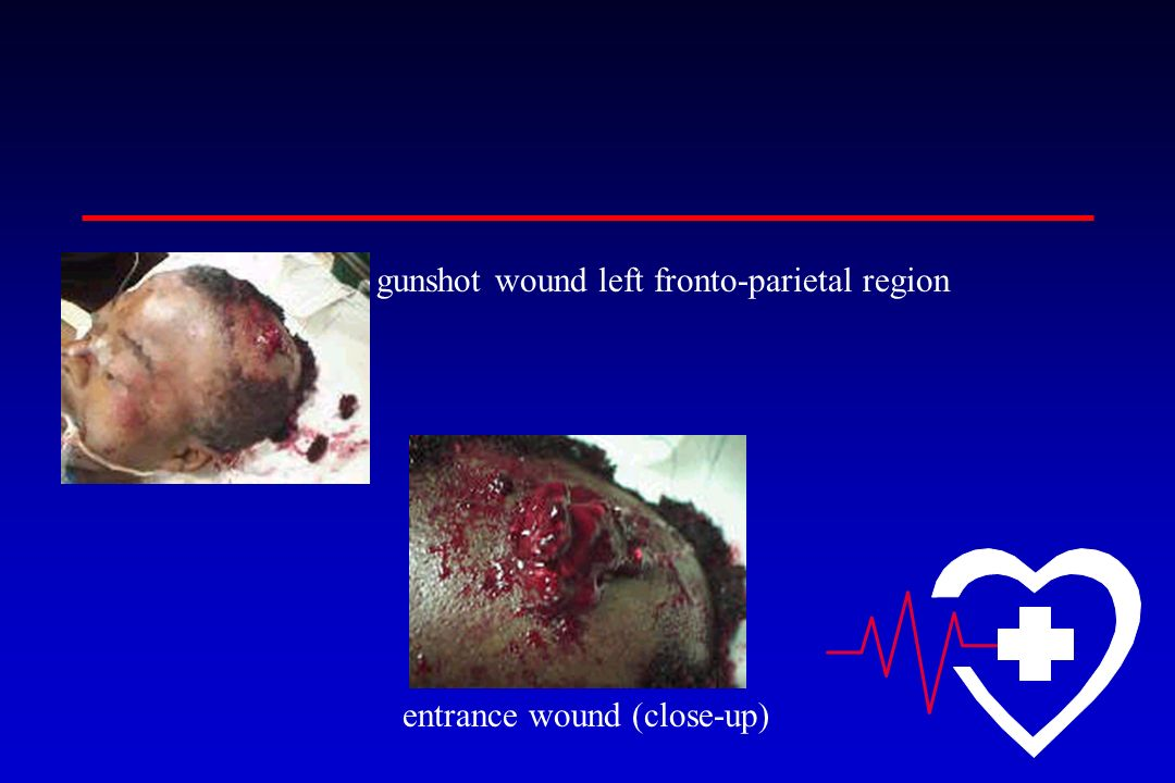 gunshot wound left fronto-parietal region