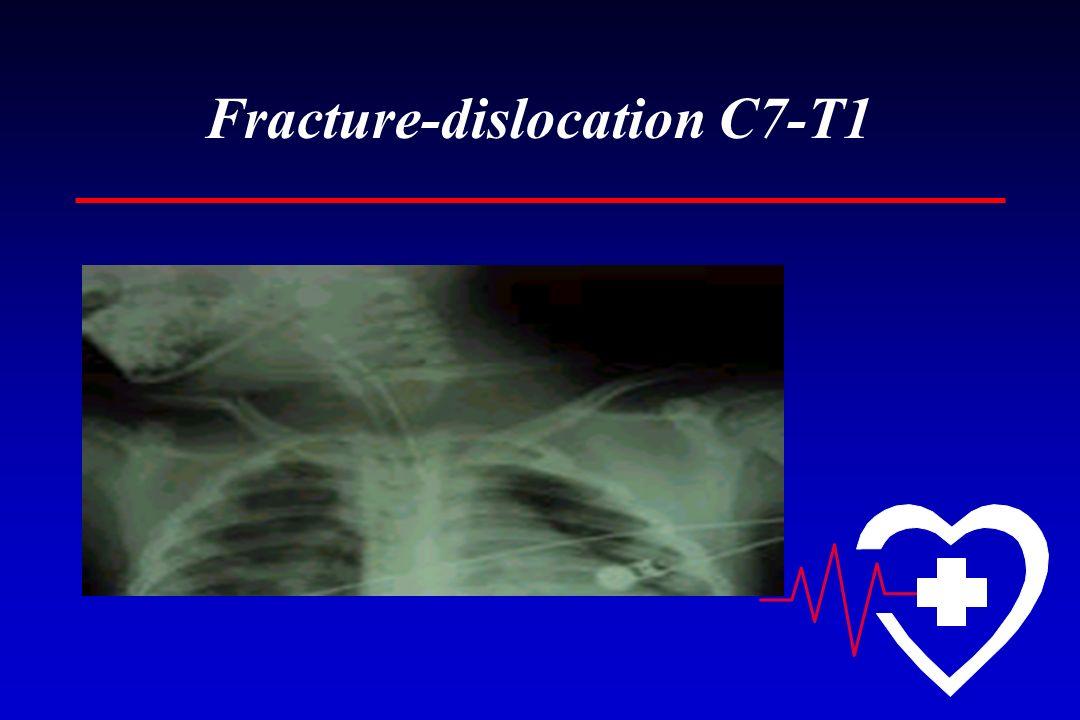 Fracture-dislocation C7-T1