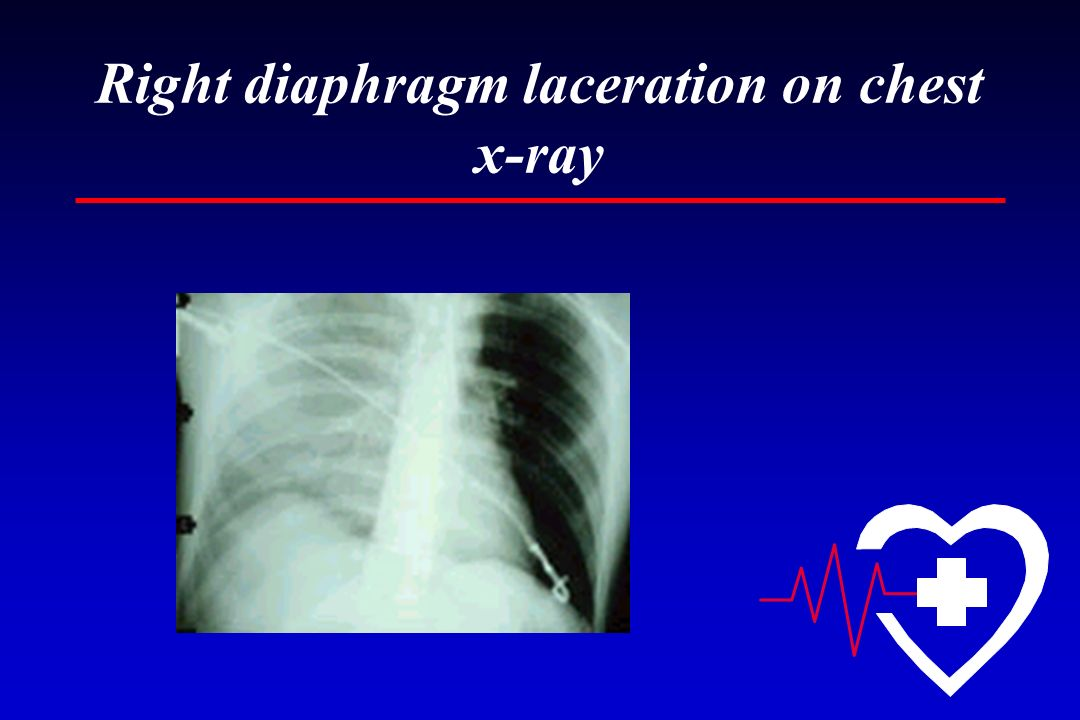 Right diaphragm laceration on chest x-ray