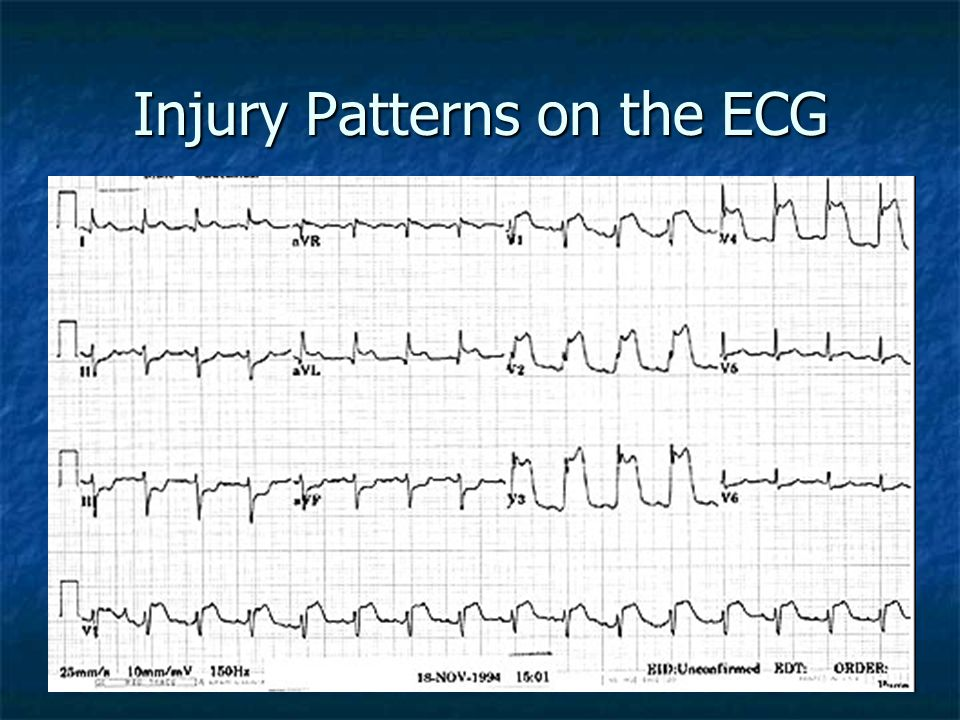 Injury Patterns on the ECG
