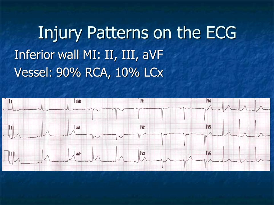 Injury Patterns on the ECG