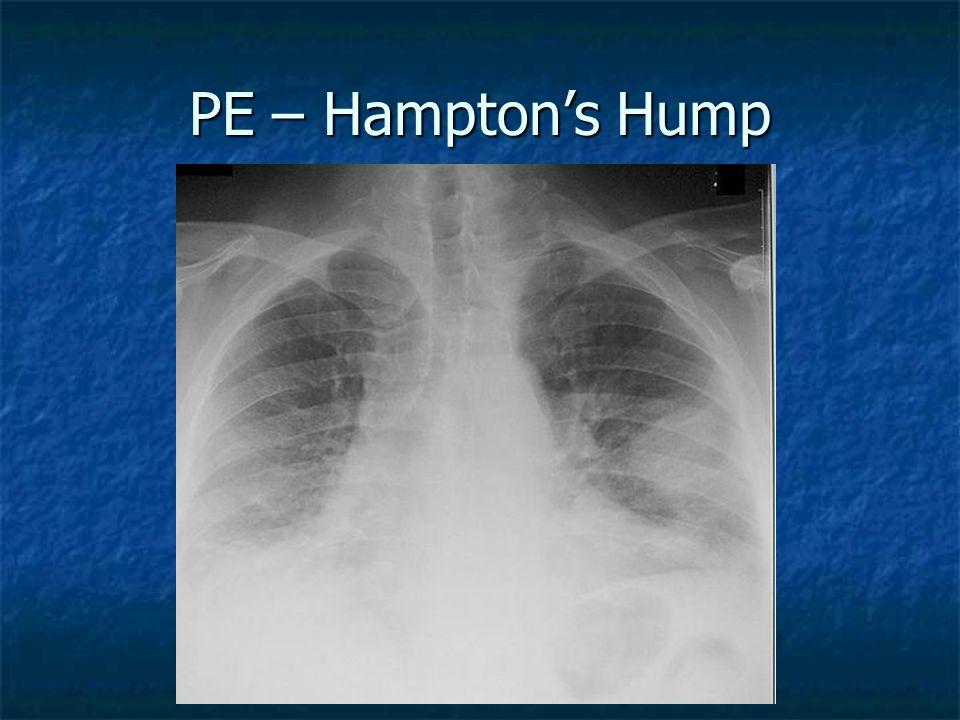 PE – Hampton's Hump