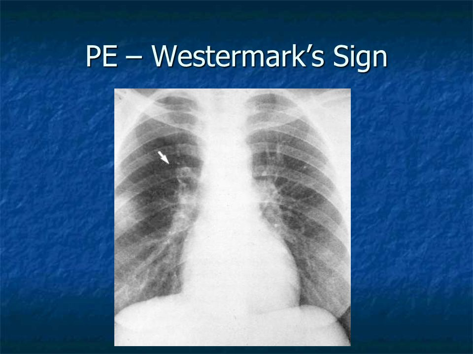 PE – Westermark's Sign