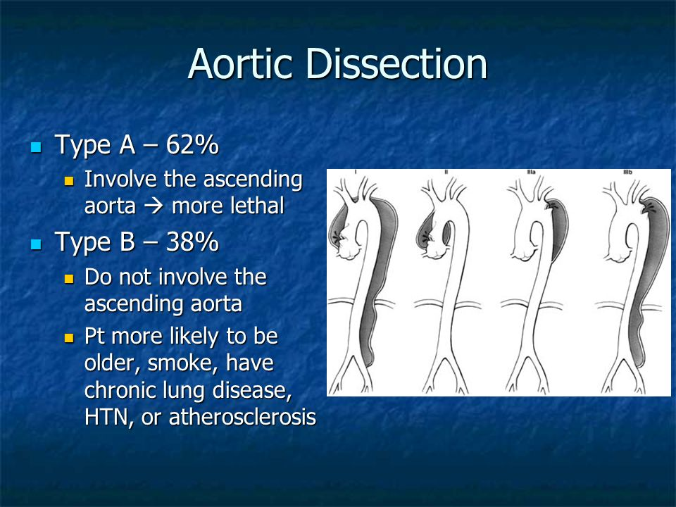 Aortic Dissection Type A – 62% Type B – 38%