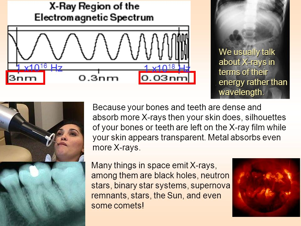 We usually talk about X-rays in terms of their energy rather than wavelength.