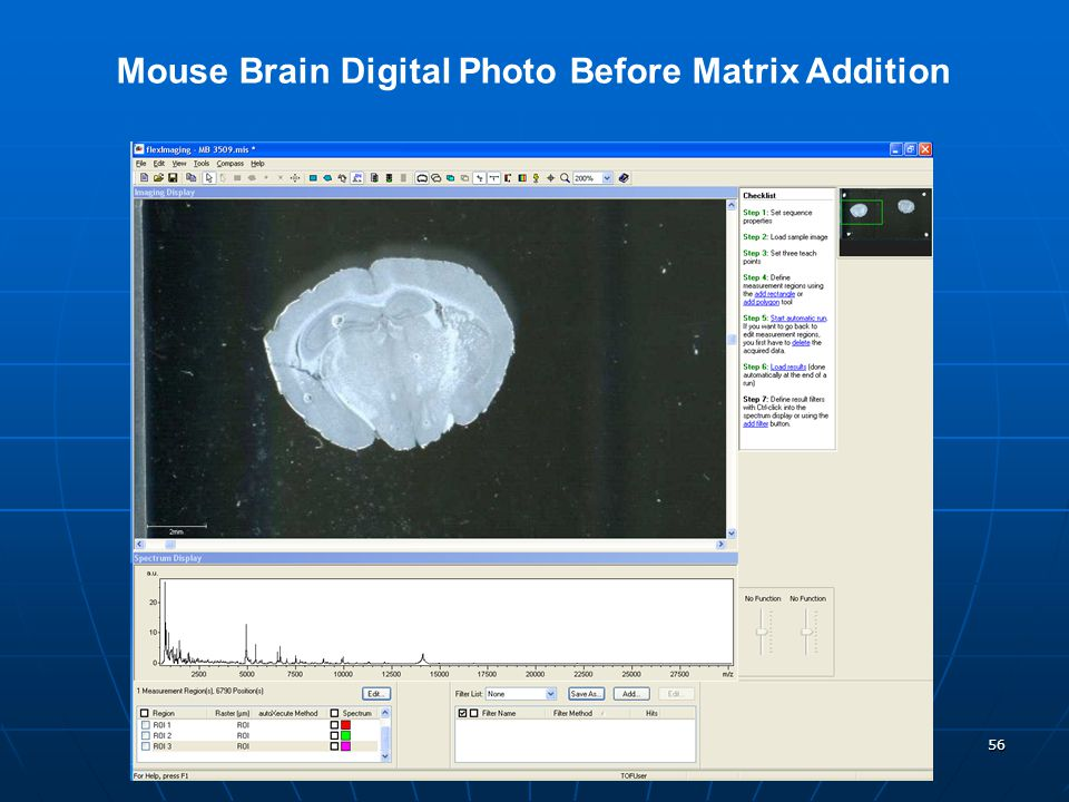 Mouse Brain Digital Photo Before Matrix Addition