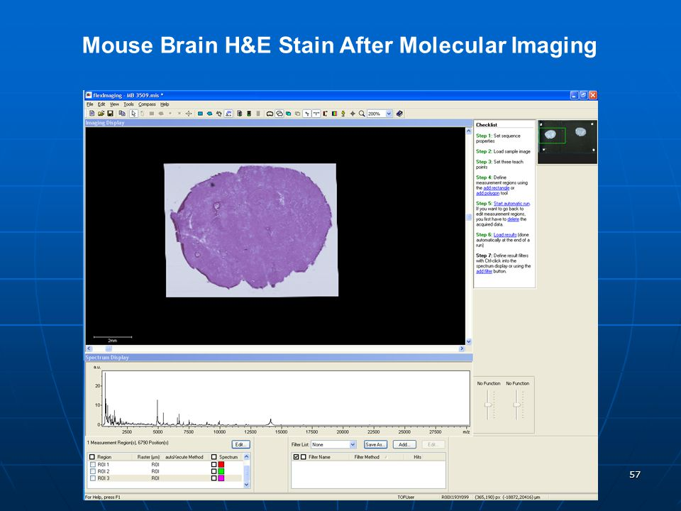 Mouse Brain H&E Stain After Molecular Imaging