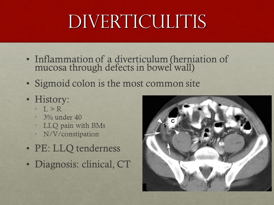 Diverticulitis Inflammation of a diverticulum (herniation of mucosa through defects in bowel wall)