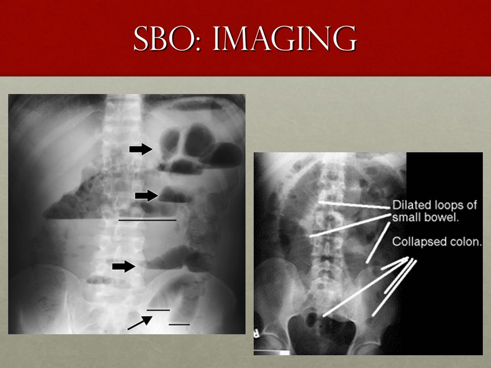 SBO: Imaging