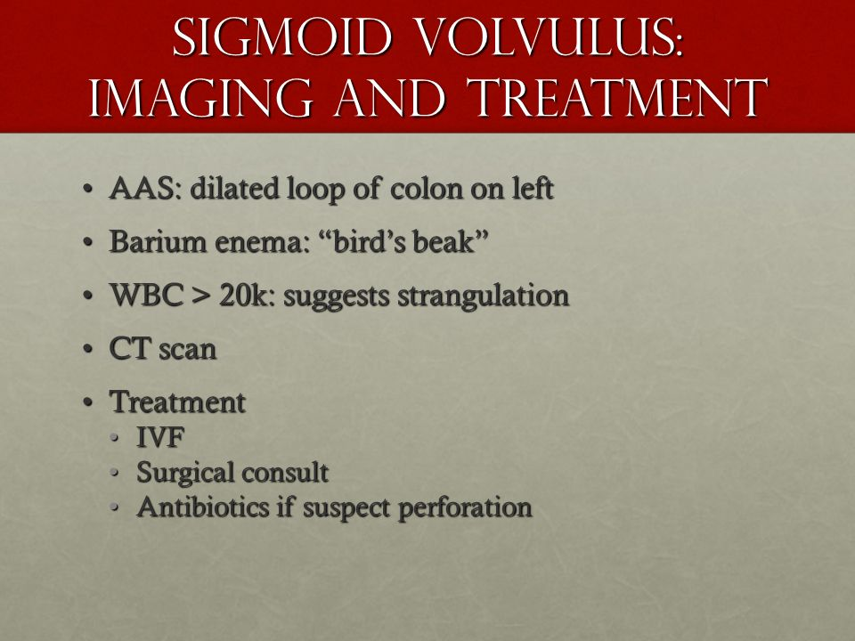 Sigmoid Volvulus: Imaging and Treatment