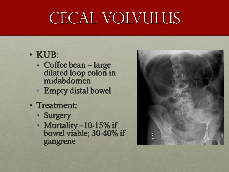Cecal Volvulus KUB: Treatment: