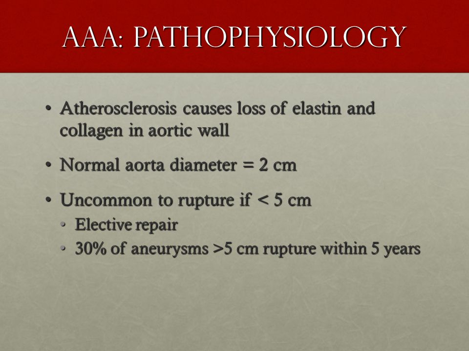 AAA: Pathophysiology Atherosclerosis causes loss of elastin and collagen in aortic wall. Normal aorta diameter = 2 cm.