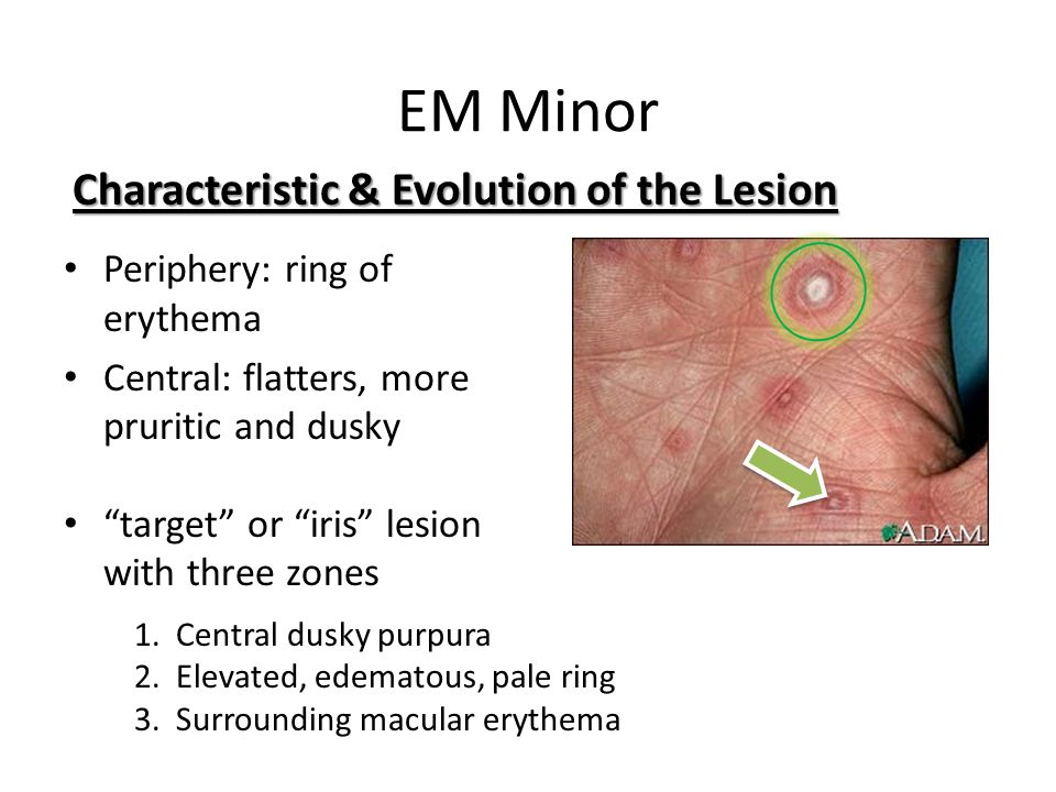 EM Minor Characteristic & Evolution of the Lesion
