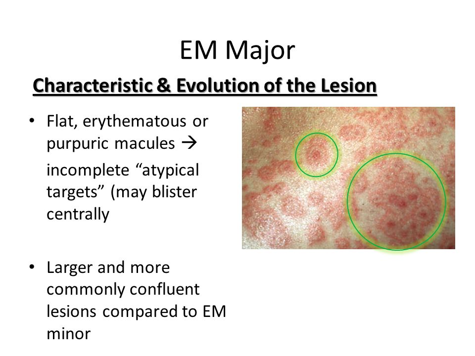 EM Major Characteristic & Evolution of the Lesion