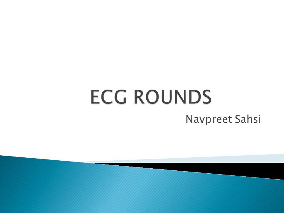 ECG ROUNDS Navpreet Sahsi