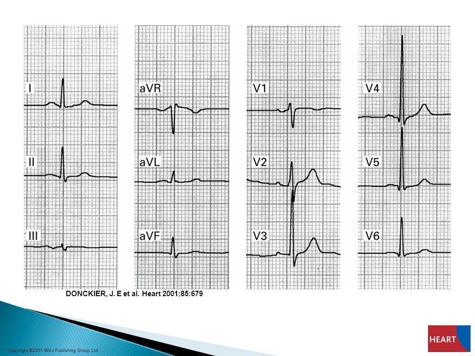 DONCKIER, J. E et al. Heart 2001;85:679