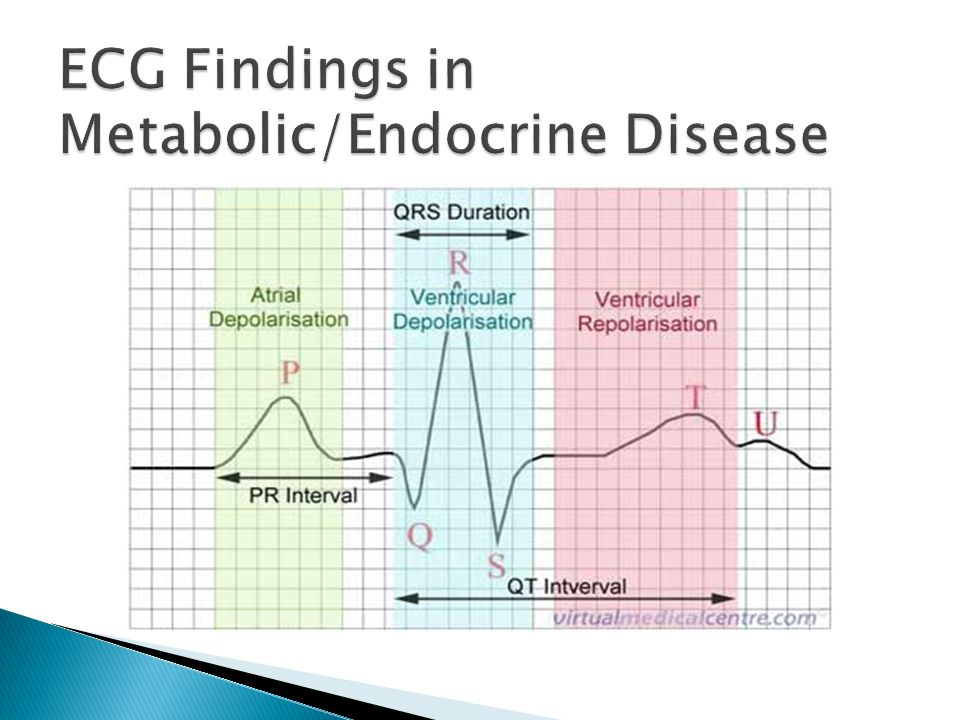 ECG Findings in Metabolic/Endocrine Disease