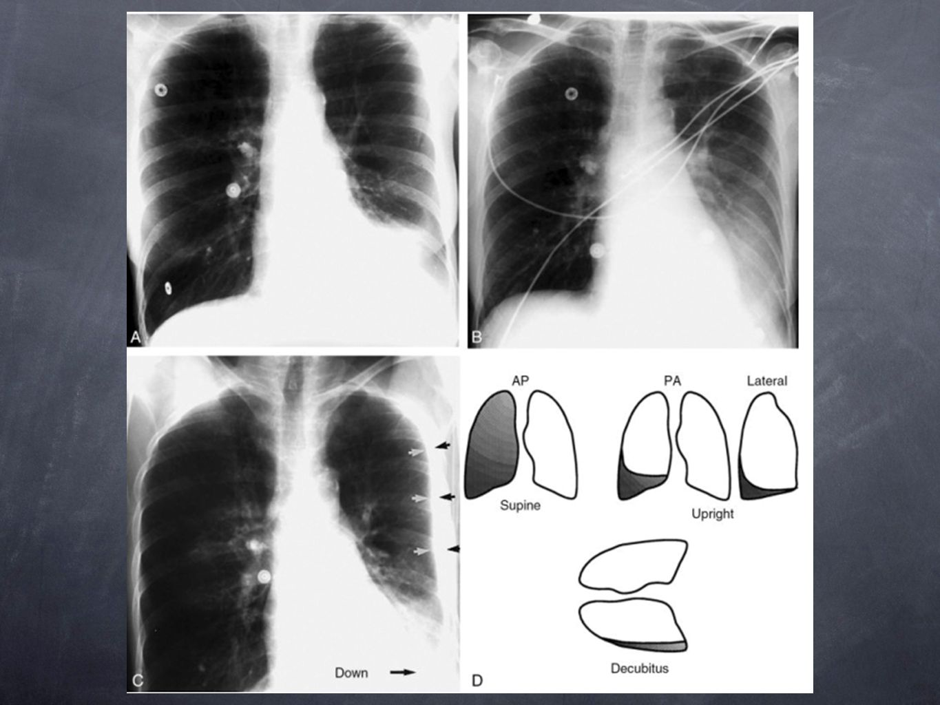 Pleural effusion appearance depends on the patient's position