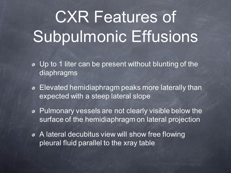 CXR Features of Subpulmonic Effusions