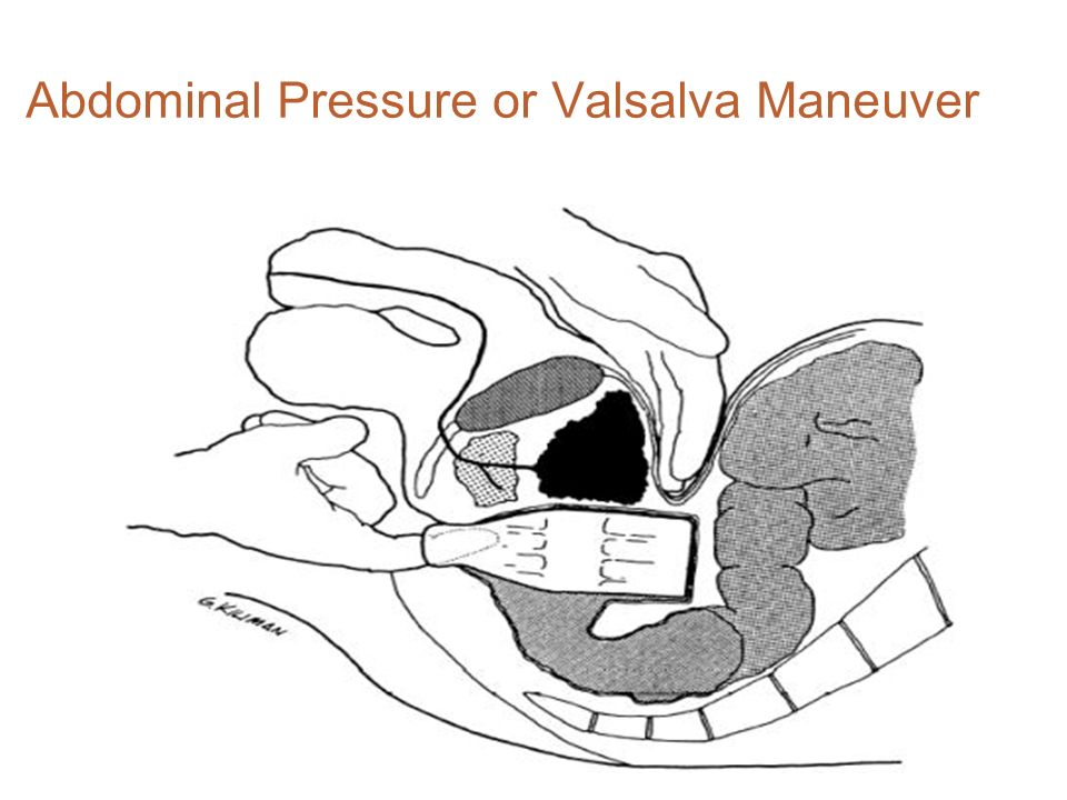 Abdominal Pressure or Valsalva Maneuver