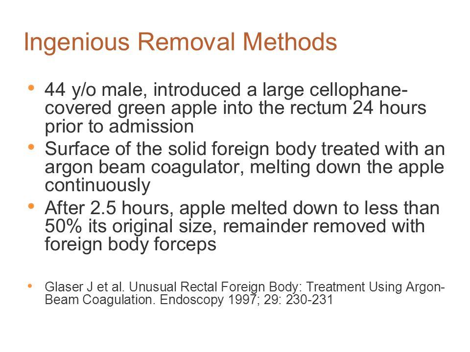 Ingenious Removal Methods