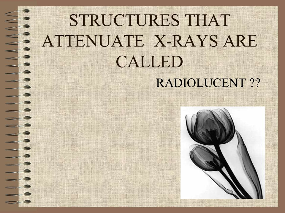 STRUCTURES THAT ATTENUATE X-RAYS ARE CALLED