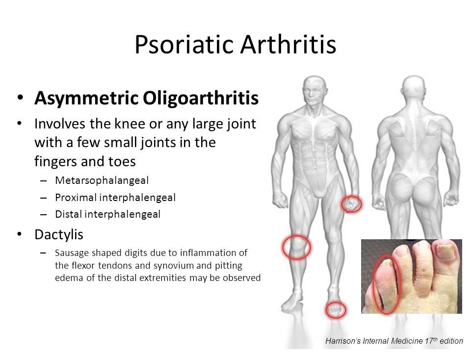 Psoriatic Arthritis Asymmetric Oligoarthritis