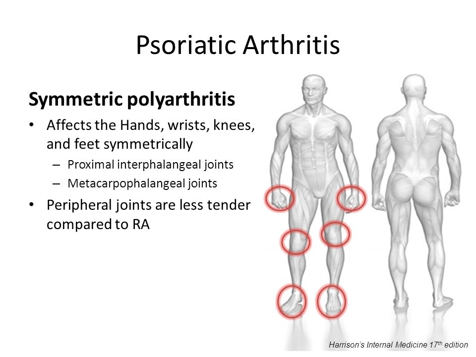 Psoriatic Arthritis Symmetric polyarthritis