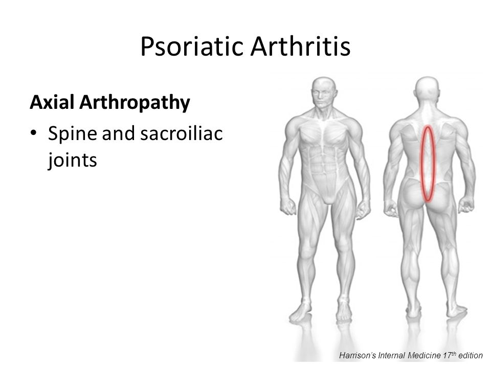 Psoriatic Arthritis Axial Arthropathy Spine and sacroiliac joints