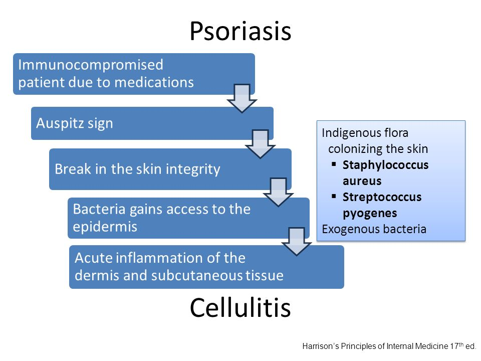 Psoriasis Immunocompromised patient due to medications. Auspitz sign. Break in the skin integrity.