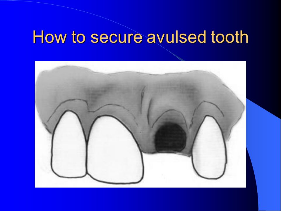 How to secure avulsed tooth