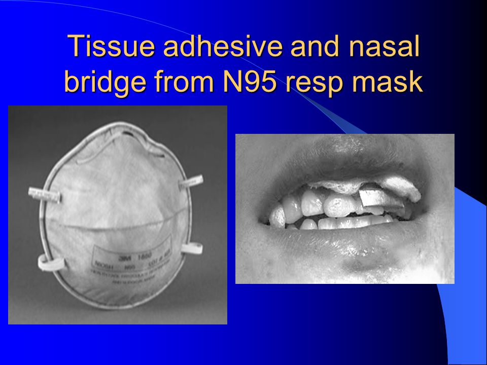 Tissue adhesive and nasal bridge from N95 resp mask