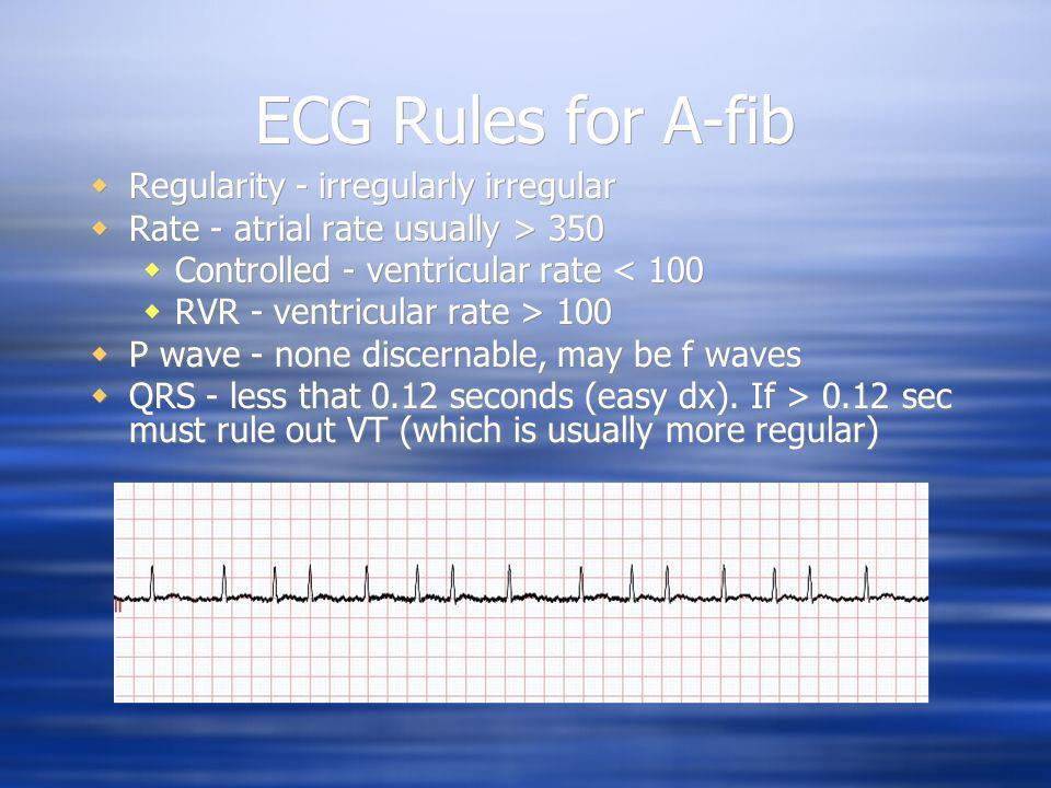 ECG Rules for A-fib Regularity - irregularly irregular