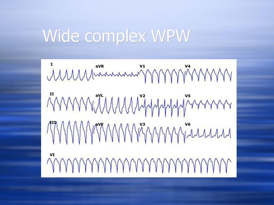 Wide complex WPW