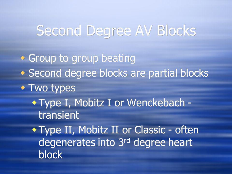 Second Degree AV Blocks