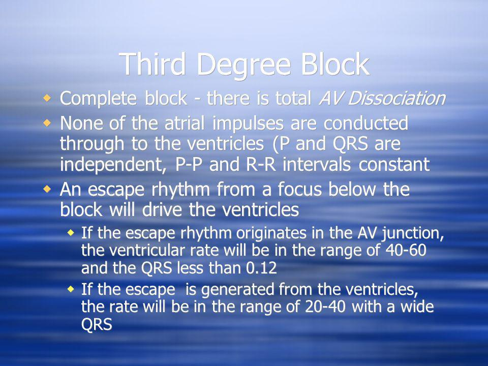 Third Degree Block Complete block - there is total AV Dissociation