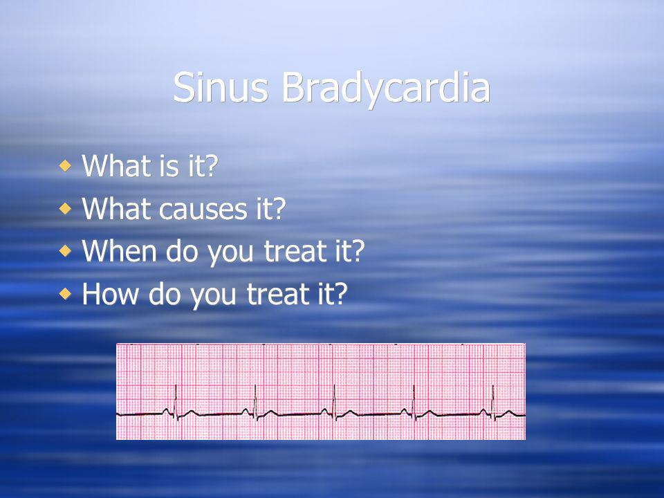 Sinus Bradycardia What is it What causes it When do you treat it