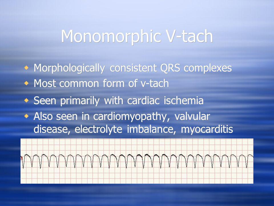 Monomorphic V-tach Morphologically consistent QRS complexes