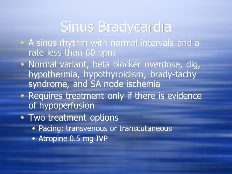 Sinus Bradycardia A sinus rhythm with normal intervals and a rate less than 60 bpm.