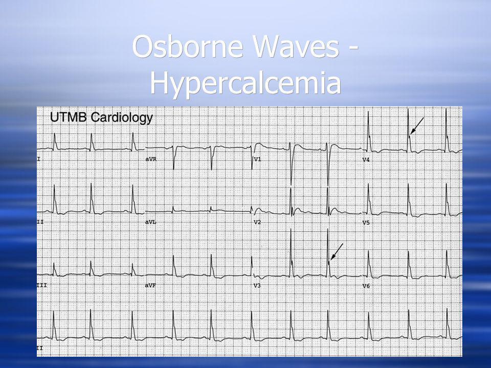 Osborne Waves - Hypercalcemia