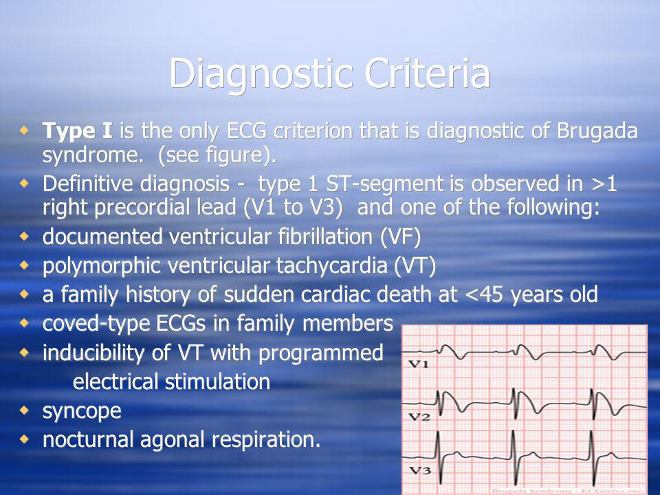 Diagnostic Criteria Type I is the only ECG criterion that is diagnostic of Brugada syndrome. (see figure).