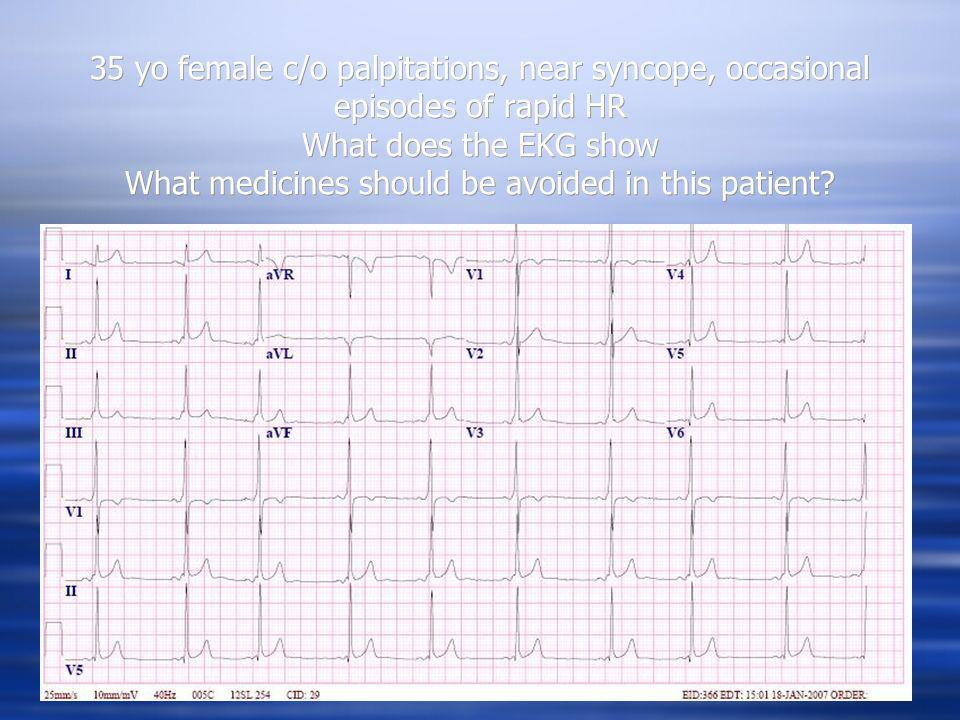 35 yo female c/o palpitations, near syncope, occasional episodes of rapid HR What does the EKG show What medicines should be avoided in this patient