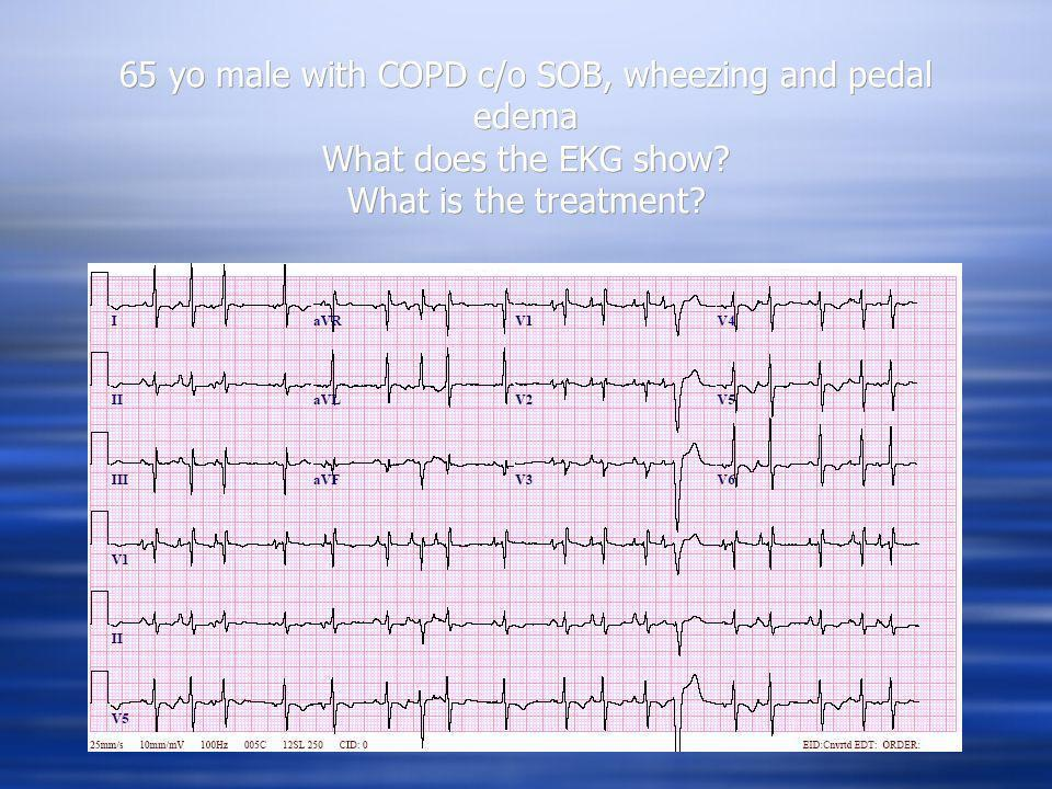 65 yo male with COPD c/o SOB, wheezing and pedal edema What does the EKG show What is the treatment