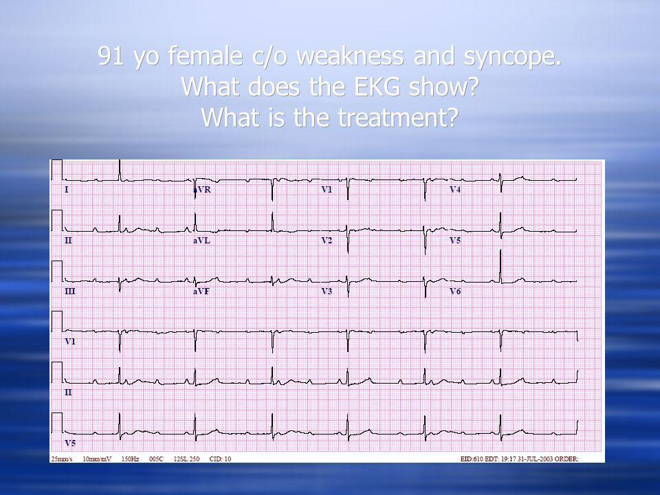 91 yo female c/o weakness and syncope. What does the EKG show