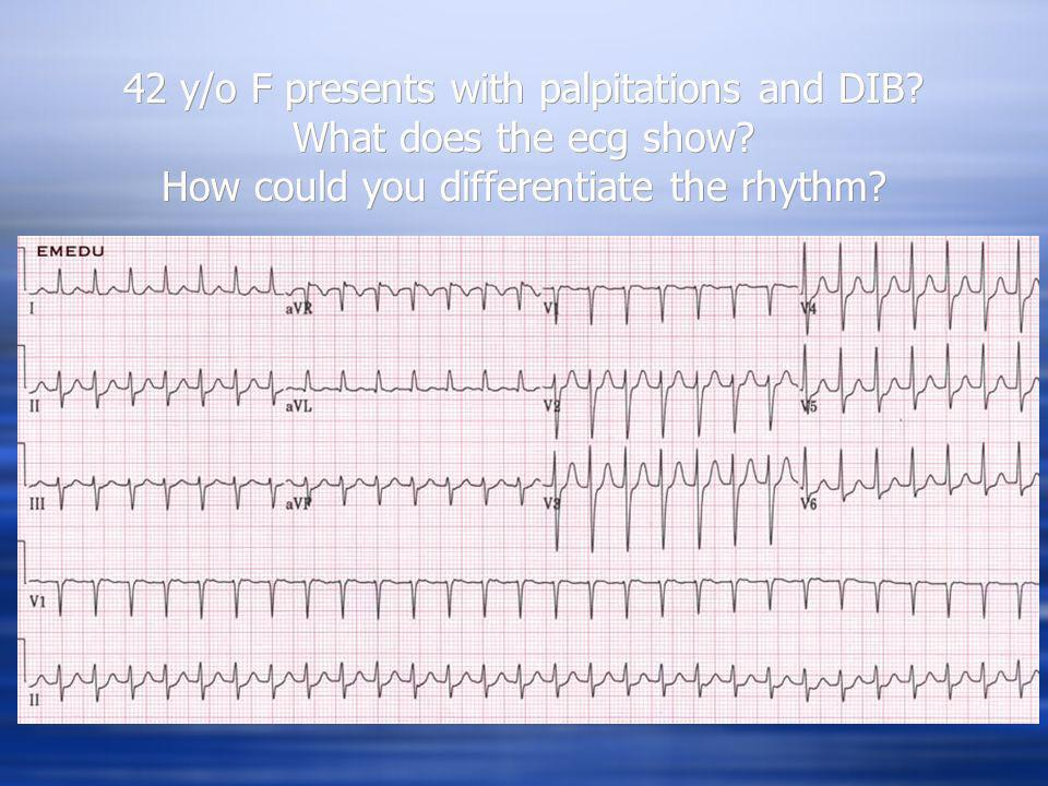 42 y/o F presents with palpitations and DIB. What does the ecg show