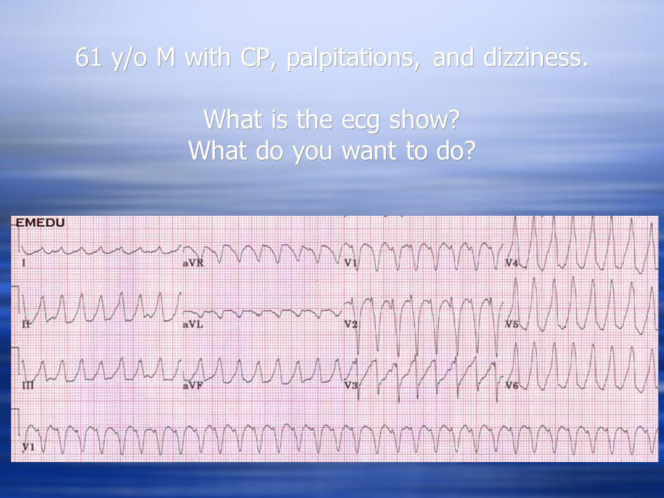 61 y/o M with CP, palpitations, and dizziness. What is the ecg show