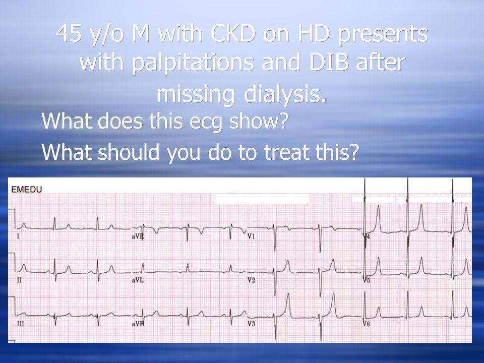 45 y/o M with CKD on HD presents with palpitations and DIB after missing dialysis.