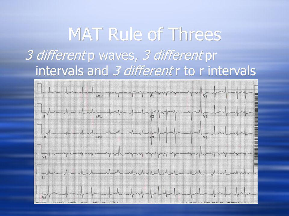 MAT Rule of Threes 3 different p waves, 3 different pr intervals and 3 different r to r intervals